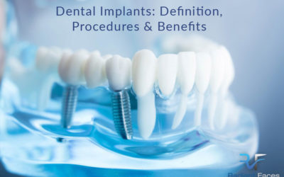 Dental Implants: Definition, Procedures, and Benefits – Bristol UK